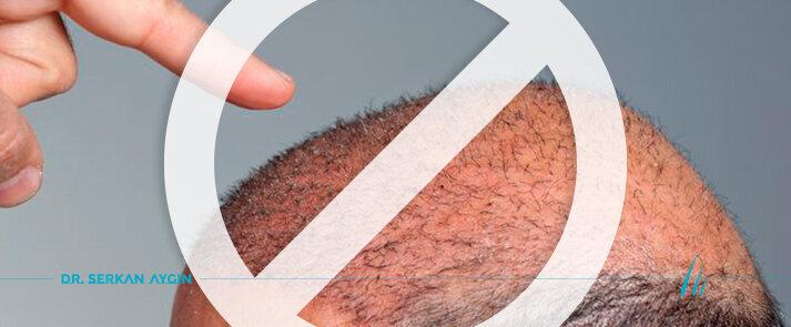 Evitare di sottoporsi a un trapianto di capelli di bassa qualità