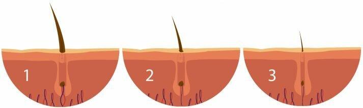 Alopecia androgenética en los hombres