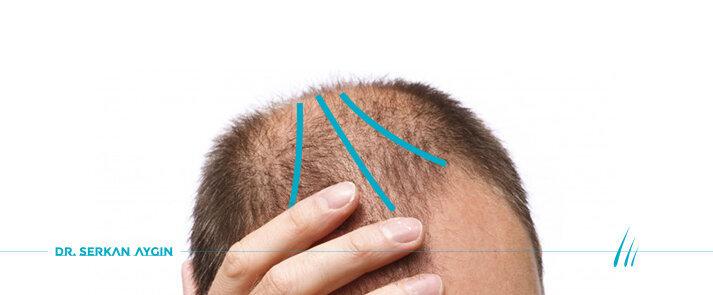 Alopecia androgenetica | Calvizie maschile