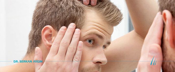 Causes of Hair Loss, Male Pattern Hair Loss