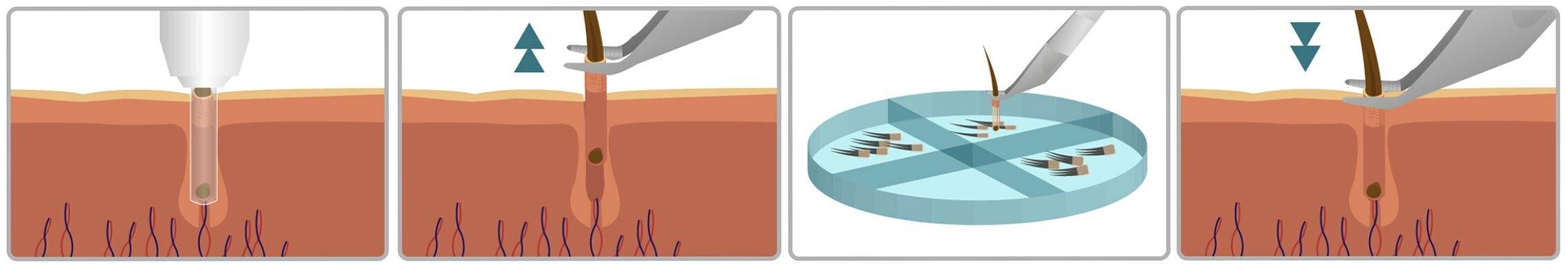 Follicular Unit Extraction