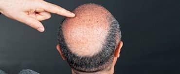 Como evitar um transplante de cabelo mal feito