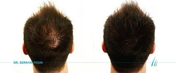 Tratamiento PRP para la caída del pelo | Plasma Rico en Plaquetas (PRP)