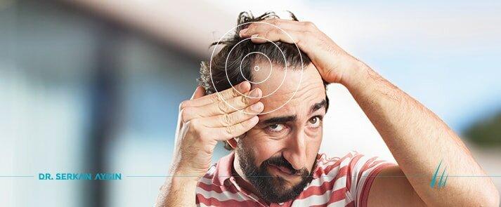 למה לצפות מהליך השתלת שיער בשיטת FUE