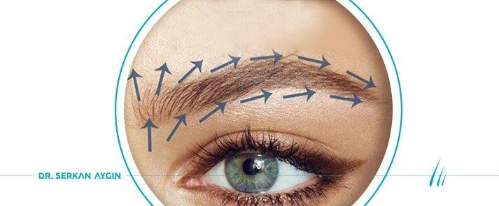 Greffe de sourcils avec méthode FUE | GREFFE de SURCİLS