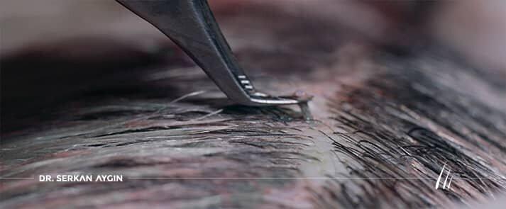 زراعة الشعر دون حلاقة بتقنية أقلام تشوى