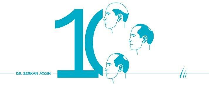 Rodzaje wypadania włosów, 10 rodzajów wypadania włosów