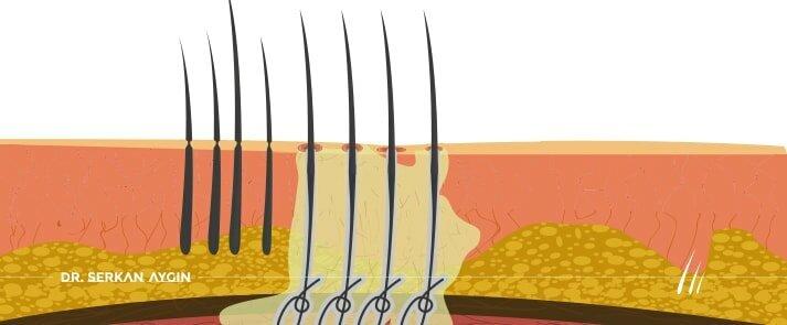 زراعة الشعر بالألياف الحيوية