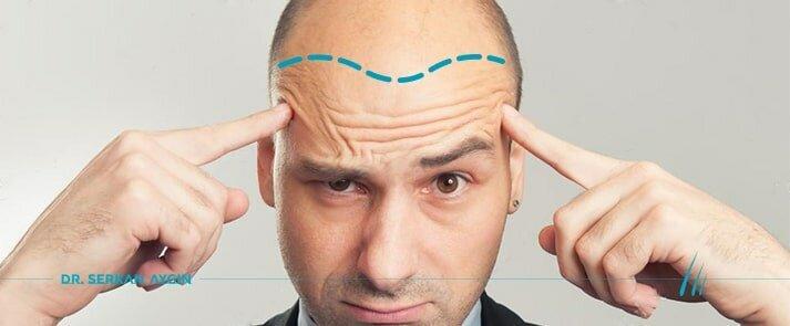 10 Fałszywe fakty dotyczące przeszczepiania włosów